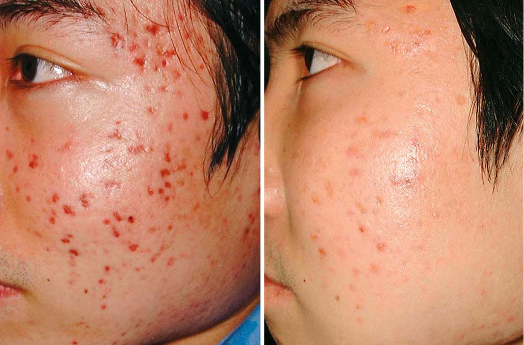 Remove your acne today the treatment of acne using natural solutions acne before and after ccuart Choice Image