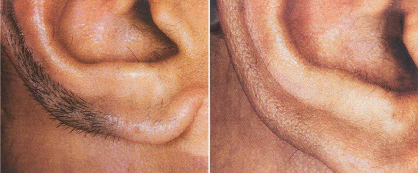 Interesting question at home laser facial hair removal for