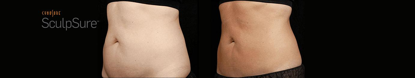 sculpsure before and after in Philadelphia