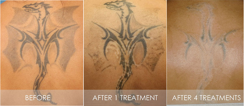 12 laser treatment tattoo removal cost the market for Best tattoo removal los angeles