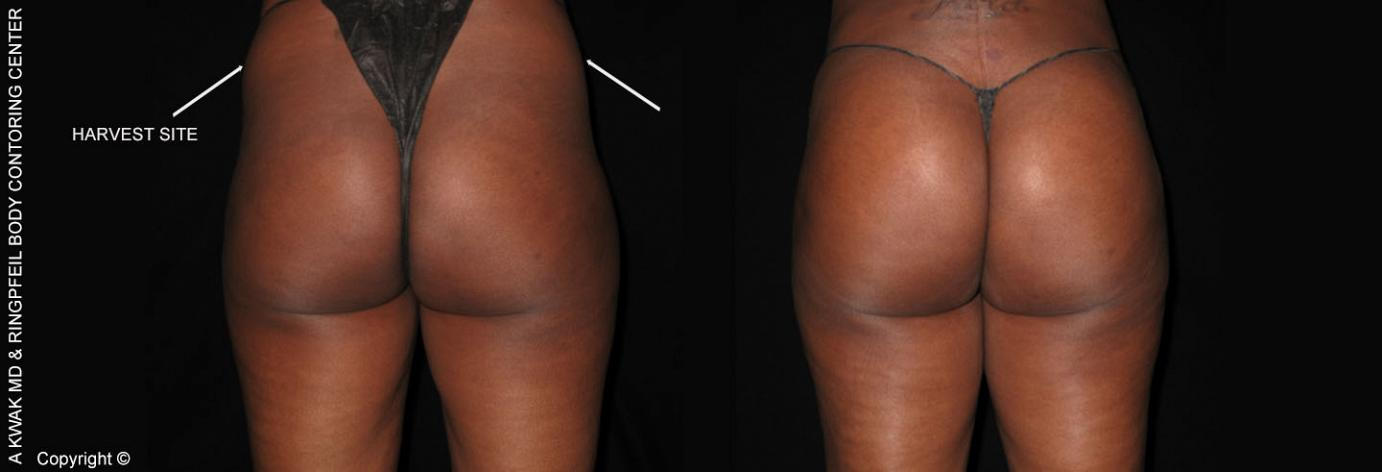 Buttocks Augmentation With Fat Transfer - Before & After