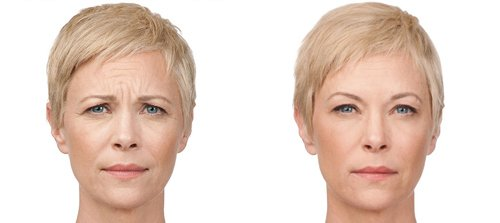 Botox injection in Philadelphia & Mainline PA - Ringpfeil Advanced