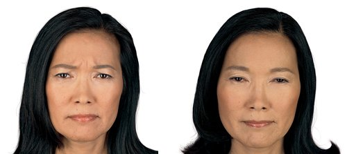 Botox vs fillers in Philadelphia