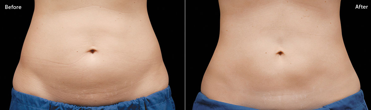 CoolSculpting - Before & After Pictures