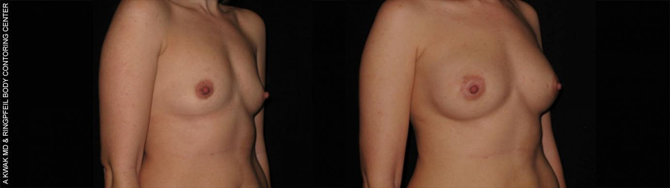 photos patient before and after Breast Augmentation