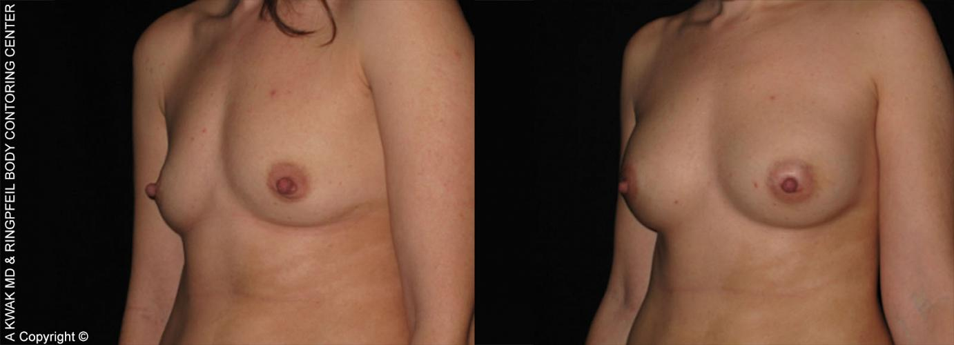 photos before and after Breast Augmentation