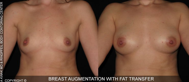 photos before and after Breast Augmentation using Fat Transfer