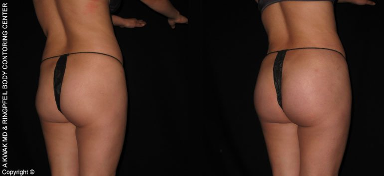 Non-Surgical Buttock Augmentation with Fat Transfer