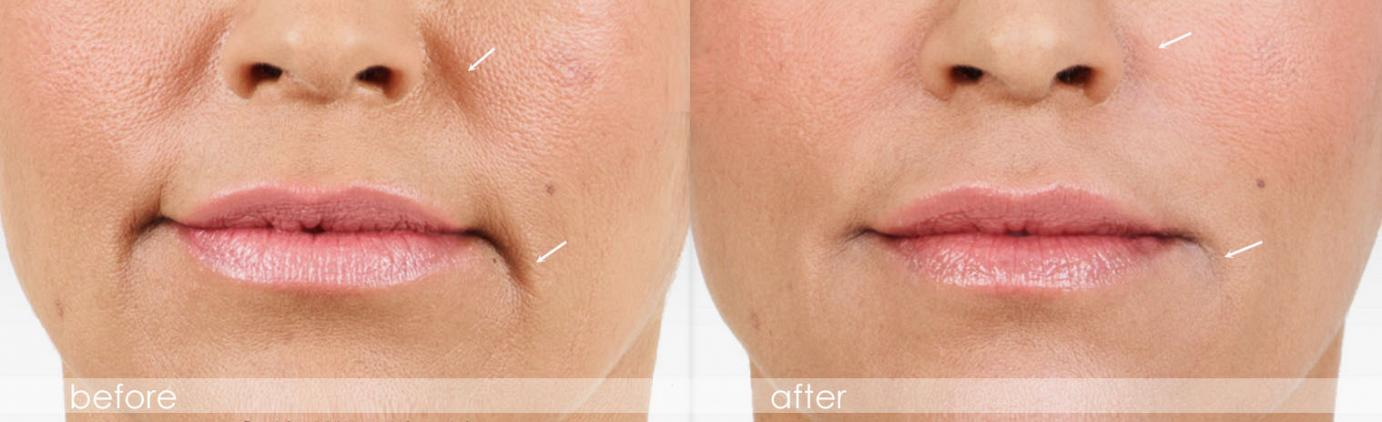 dermal filler - Juvederm - before and after