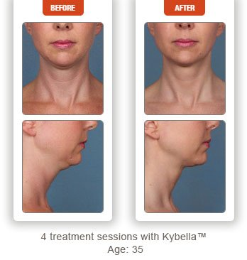 photos patient before and after Kybella treatment double chin