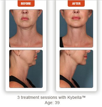 photos before and after kybella