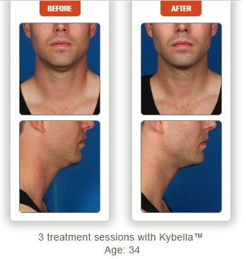male patient before and after Kybella treatment double chin - photos