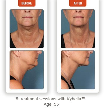 female patient before and after Kybella treatment double chin - photos