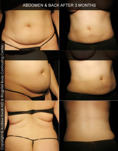 photos abdomen before and after 3 months Liposuction procedure