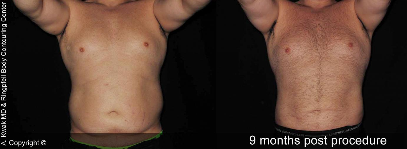 photos patient Before And After 9 Months Abdomen Liposuction