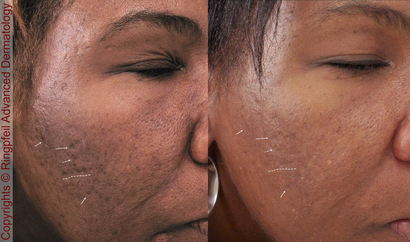 Treating scars with Infini and Picosure