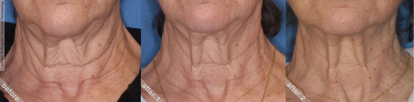 Philadelphia Neck Tightening  Before & After Pictures