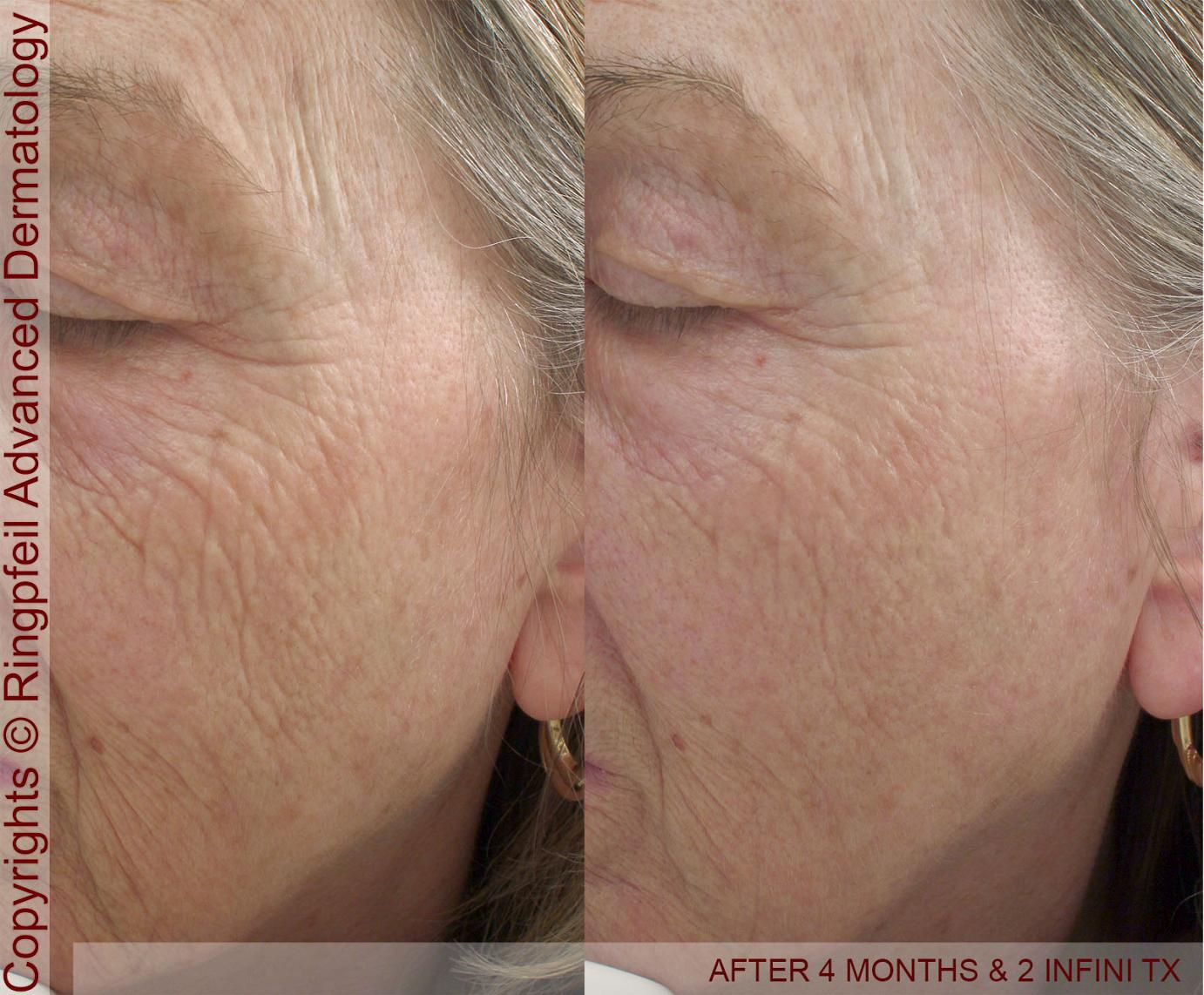 Facial skin tightening with Infini - after two treatmetns