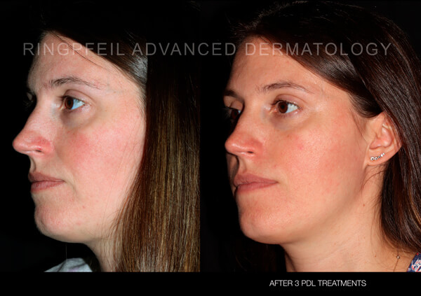Rosacea Treatment Philadelphia Main Line Pa