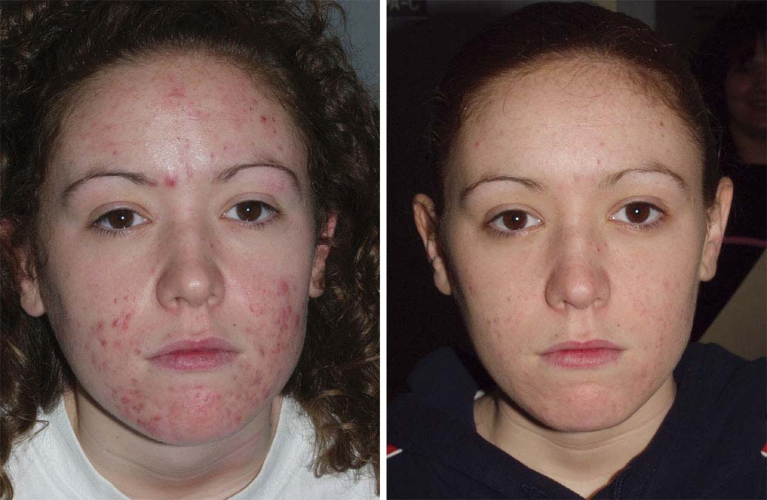 acne treatment with smoothbeam before and after