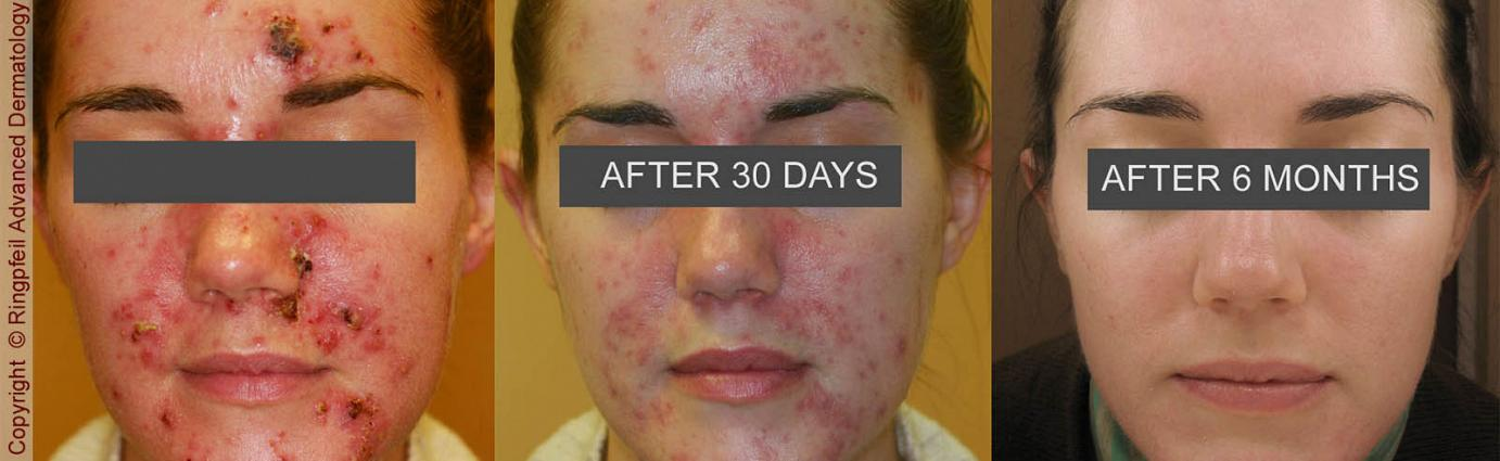 Philadelphia Acne Treatment Before & After Pictures