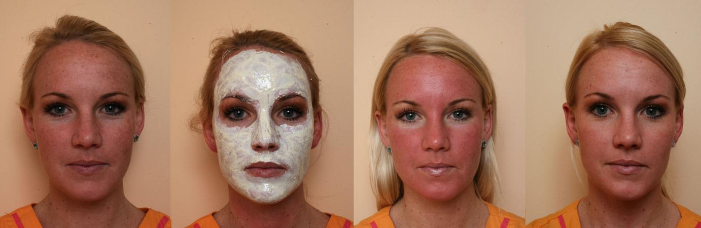 Brown Spots and AgeSpots treatment in Philadelphia & Main Line