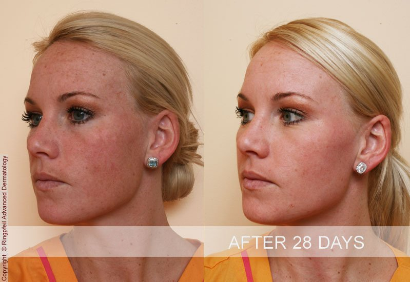 photos patient before and after treatments brown spots