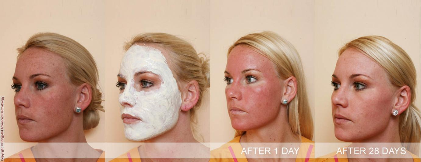 chemical peel treatment in Philadelphia