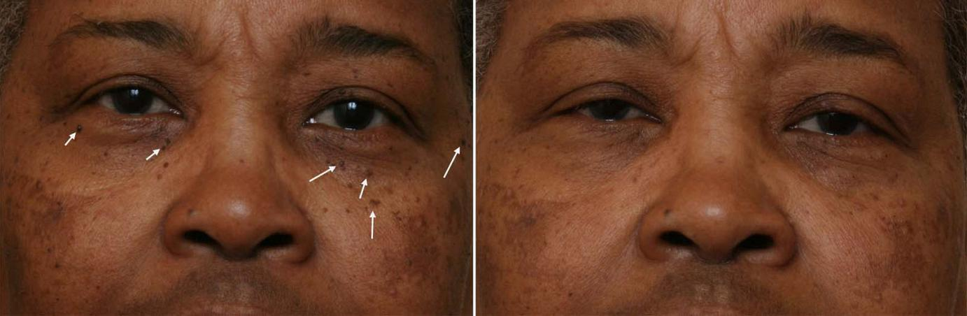 African American and Ethnic Skin Dermatology - Black