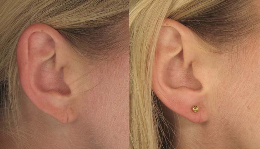 Earlobes Repair Philadelphia Pa Torn Ear Lobe Main Line