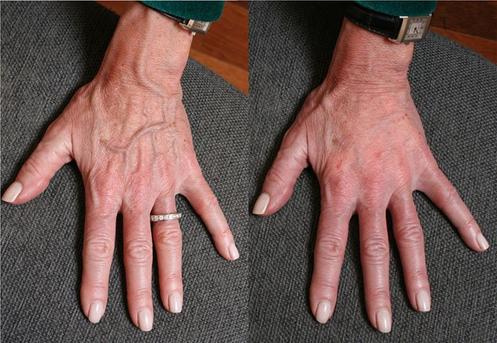 hands rejuvenation with filler before and after