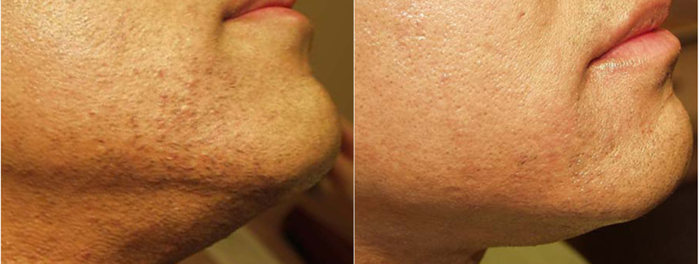 Facial Hair Removal Philadelphia For Women And Men Main Line Pa