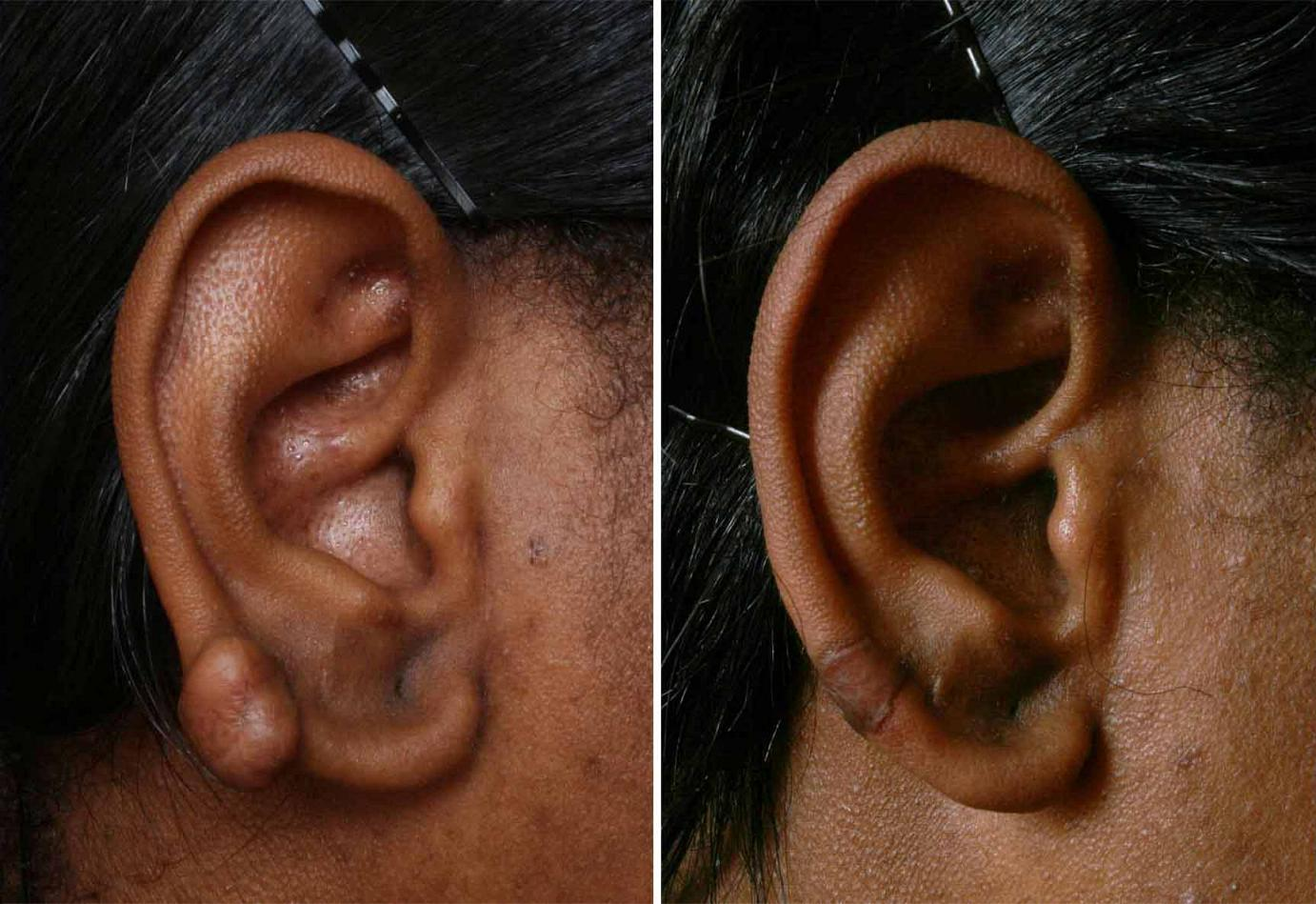 steroid injection in ear for tinnitus