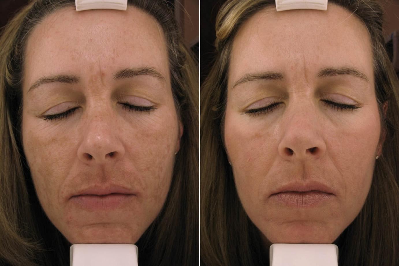 Melanage Peel In Philadelphia And Mainline Pa Ringpfeil