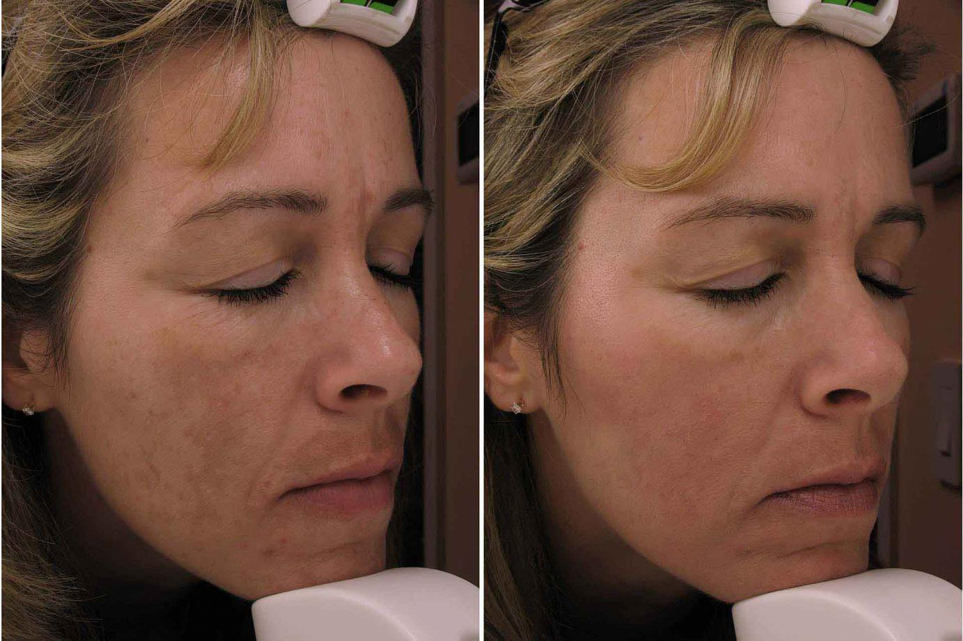 Right Before & After Melasma Treatment