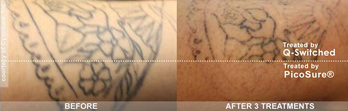 Before and After 3 Treatment -Picosure Vs. QSwitch in Philadelphia - tattoo removal
