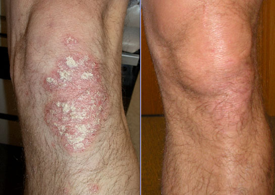 psoriasis treatment before and after