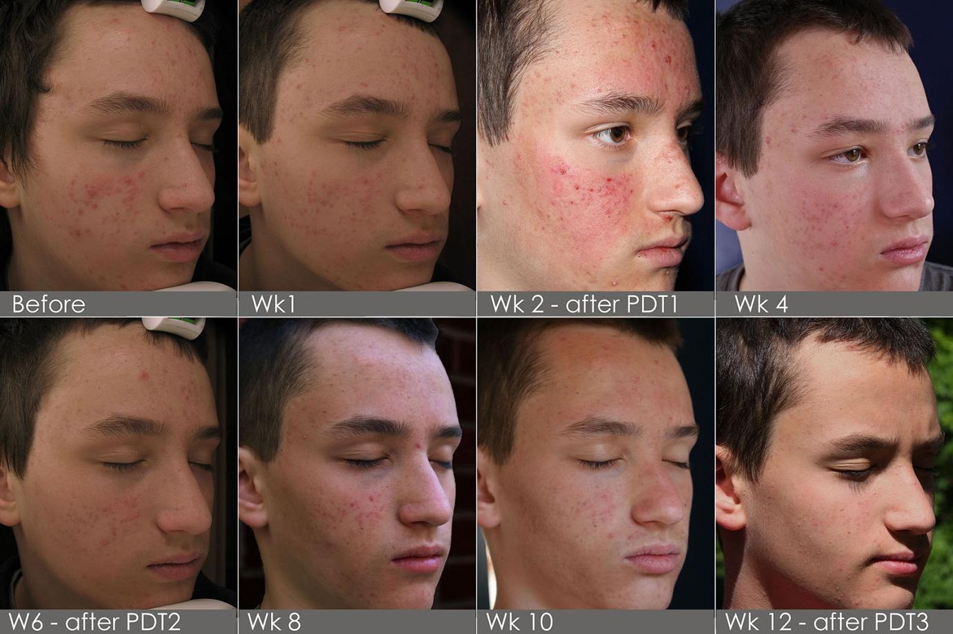 Teenage Acne Treatment In Philadelphia And Mainline Pa