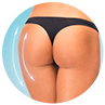 Buttock Augmentation