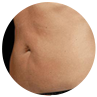 SculpSure – Fat Removal
